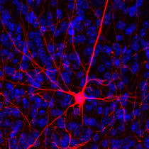 Synthetic DNA helps to visualize neurons in great detail. Photo courtesy of Andrew Kottick